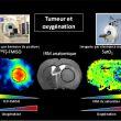 Validation d'une méthode originale d'imagerie de l'oxygénation cérébrale par IRM