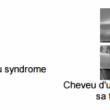 L'origine du syndrome des cheveux incoiffables identifiée