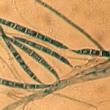 Une mycotoxine amplifie la cancérogenèse colorectale