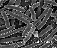 Escherichia Coli observ�e au microscope �lectronique.
