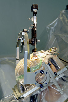 Opération neurochirurgicale