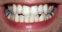 Teeth by David Shankbone.jpg