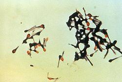 Un groupe de bactéries Clostridium tetani
