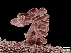 Colonie de Escherichia coli grossissement × 10000