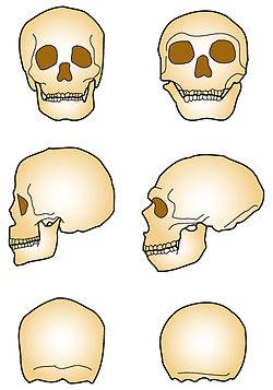 Comparaison des crânes d'Homo sapiens (à gauche) etd'Homo neanderthalensis (à droite)