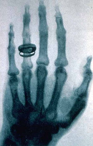 Une des premières radiographies prise par Wilhelm Röntgen.