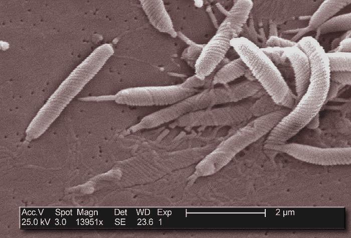 Helicobacter pylori - Définition et Explications - Techno-Science.net